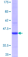 ZP2 Protein - 12.5% SDS-PAGE Stained with Coomassie Blue