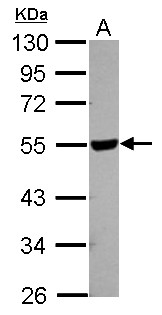 Sample (30 ug of whole cell lysate) A: 293T 10% SDS PAGE HYAL2 antibody diluted at 1:1000