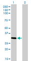 Western Blot analysis of ZNF124 expression in transfected 293T cell line by ZNF124 monoclonal antibody (M01), clone 4G4.Lane 1: ZNF124 transfected lysate(33.3 KDa).Lane 2: Non-transfected lysate.