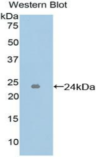 ICAM4 / CD242 Antibody - Western blot of recombinant ICAM4 / CD242.  This image was taken for the unconjugated form of this product. Other forms have not been tested.