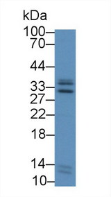 ICAM4 / CD242 Antibody - Western Blot; Sample: Human Liver lysate; Primary Ab: 2µg/mL Rabbit Anti-Human ICAM4 Antibody Second Ab: 0.2µg/mL HRP-Linked Caprine Anti-Rabbit IgG Polyclonal Antibody
