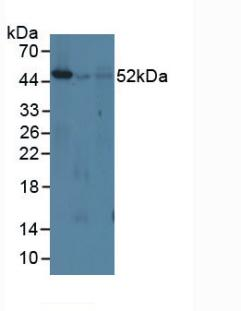 Western Blot; Sample: Lane1: Mouse Spleen Tissue; Lane2: Mouse Lung Tissue; Lane3: Mouse Lymph Node Tissue.