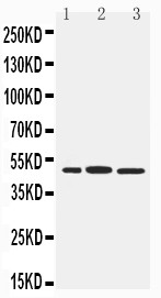 WB of ICSBP / IRF8 antibody. Lane 1: RAJI Cell Lysate. Lane 2: Rat Liver Tissue Lysate. Lane 3: Rat Kidney Tissue Lysate.