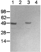 Western Blot of thioglycollate-elicited peritoneal macrophages after in vitro treatment with IFNgamma and LPS. Lane 1, stimulated cells in a non-reduced lysate; lane 2, cells cultured for 5 hours in the absence of stimulation (non-reduced); lane 3, stimulated cells in a reduced lysate; lane 4 cells cultured for 5 hours in the absence of stimulation (reduced). Bands were visualized using HRP-conjugated anti-rabbit IgG secondary antibody.
