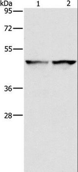 IDH1 / IDH Antibody - Western blot analysis of 231 and HeLa cell, using IDH1 Polyclonal Antibody at dilution of 1:550.