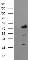 HEK293T cells were transfected with the pCMV6-ENTRY control (Left lane) or pCMV6-ENTRY IDO1 (Right lane) cDNA for 48 hrs and lysed. Equivalent amounts of cell lysates (5 ug per lane) were separated by SDS-PAGE and immunoblotted with anti-IDO1.