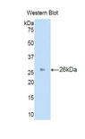 Western blot of recombinant IDS.  This image was taken for the unconjugated form of this product. Other forms have not been tested.