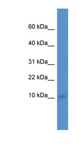 IER3IP1 Antibody - IER3IP1 antibody Western blot of Mouse Kidney lysate. This image was taken for the unconjugated form of this product. Other forms have not been tested.