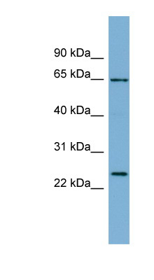 IFFO1 antibody LS-C107905 Western blot of ACHN lysate.  This image was taken for the unconjugated form of this product. Other forms have not been tested.