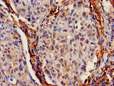 IHC image of IFITM2 Antibody diluted at 1:700 and staining in paraffin-embedded human lung cancer performed on a Leica BondTM system. After dewaxing and hydration, antigen retrieval was mediated by high pressure in a citrate buffer (pH 6.0). Section was blocked with 10% normal goat serum 30min at RT. Then primary antibody (1% BSA) was incubated at 4°C overnight. The primary is detected by a biotinylated secondary antibody and visualized using an HRP conjugated SP system.