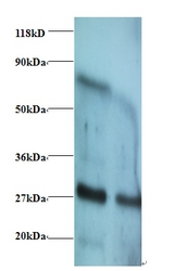 Western blot of Interferon gamma antibody at 2 ug/ml. Lane 1: EC109whole cell lysate. Lane 2: 293T whole cell lysate. Secondary: Goat polyclonal to Rabbit IgG at 1:15000 dilution. Predicted band size: 18.3 kDa. Observed band size: 27 kDa Additional bands at: 70 kDa. We are unsure as to the identity of this extra band.  This image was taken for the unconjugated form of this product. Other forms have not been tested.