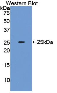 Western blot of recombinant IFNA1 / Interferon Alpha.