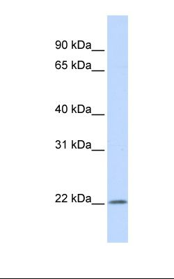 MCF7 cell lysate. Antibody concentration: 1.0 ug/ml. Gel concentration: 12%.  This image was taken for the unconjugated form of this product. Other forms have not been tested.