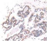DAB staining on IHC-P; Samples: Human Breast Cancer Tissue.