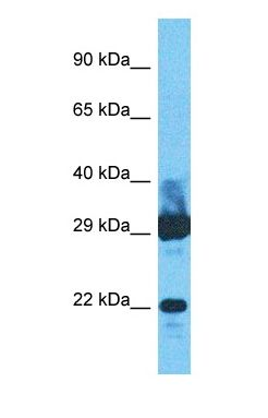 Western blot of IFNA8 Antibody with human Fetal Liver lysate.  This image was taken for the unconjugated form of this product. Other forms have not been tested.