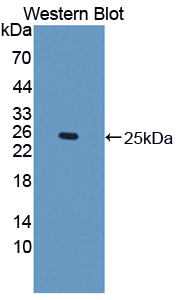 Western blot of IFNE / Interferon Epsilon antibody.