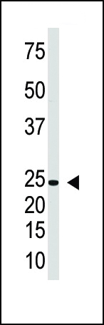 The anti-IL29 antibody is used in Western blot to detect IL29 in Jurkat cell lysate.