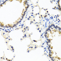 Immunohistochemistry of paraffin-embedded rat lung using IFNL1 antibody at dilution of 1:100 (40x lens).