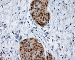 IHC of paraffin-embedded Carcinoma of pancreas tissue using anti-IFT57 mouse monoclonal antibody. (Dilution 1:50).