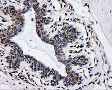 IFT57 / HIPPI Antibody - IHC of paraffin-embedded breast tissue using anti-IFT57 mouse monoclonal antibody. (Dilution 1:50).
