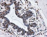 IHC of paraffin-embedded breast tissue using anti-IFT57 mouse monoclonal antibody. (Dilution 1:50).