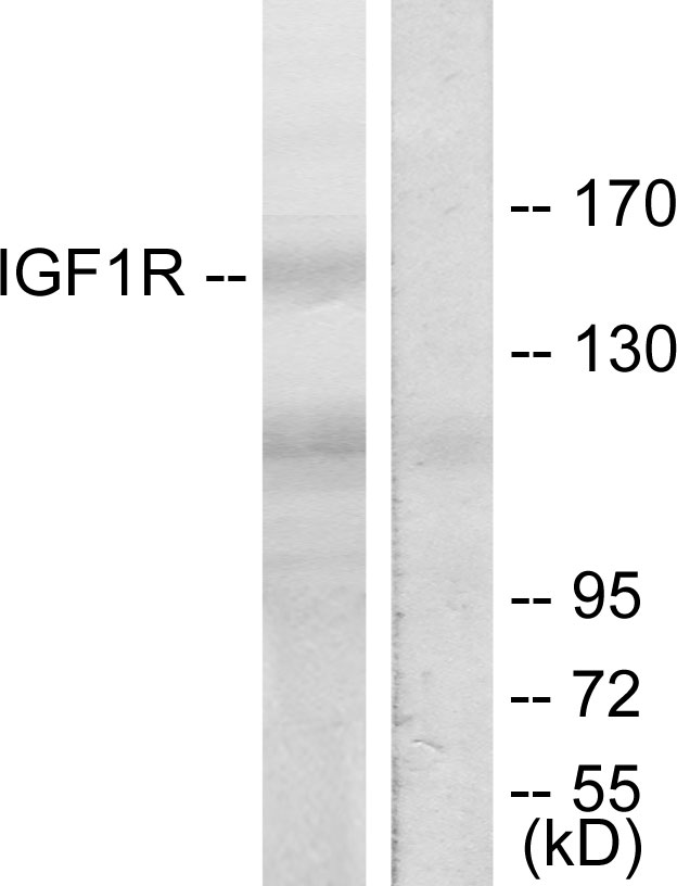Western blot analysis of lysates from 293 cells, treated with Insulin, using IGF1R Antibody. The lane on the right is blocked with the synthesized peptide.