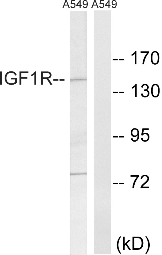Western blot analysis of lysates from A549 cells, using IGF1R Antibody. The lane on the right is blocked with the synthesized peptide.