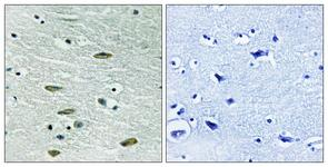 IHC of paraffin-embedded human brain tissue, using IGF1R (Ab-1346) Antibody. The picture on the right is treated with the synthesized peptide.