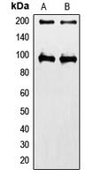 Western blot analysis of IGF1 Receptor expression in HeLa (A); MCF7 (B) whole cell lysates.