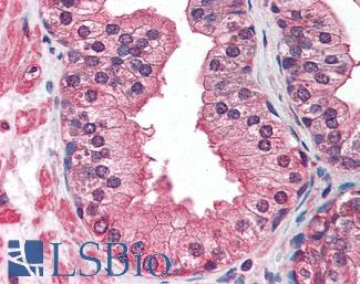 Anti-IGF1 Receptor antibody IHC of human prostate. Immunohistochemistry of formalin-fixed, paraffin-embedded tissue after heat-induced antigen retrieval. Antibody LS-B2613 concentration 10 ug/ml.  This image was taken for the unmodified form of this product. Other forms have not been tested.
