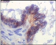 IHC of paraffin-embedded human ovary tumor showing membrane location using IGF1R antibody with DAB staining.