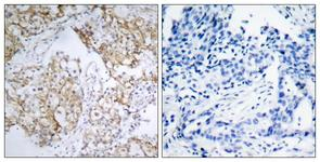 IHC of paraffin-embedded human breast carcinoma, using IGF1R (Phospho-Tyr1161) Antibody. The picture on the right is treated with the synthesized peptide.