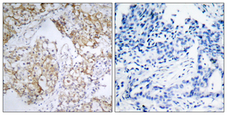 Immunohistochemistry analysis of paraffin-embedded human breast carcinoma, using IGF1R (Phospho-Tyr1161) Antibody. The picture on the right is blocked with the phospho peptide.