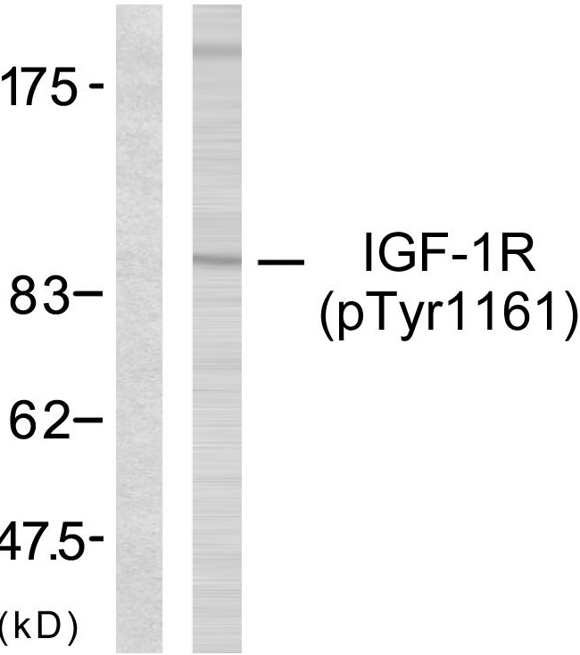 Western blot analysis of lysates from 293 cells treated with Insulin, using IGF1R (Phospho-Tyr1161) Antibody. The lane on the left is blocked with the phospho peptide.