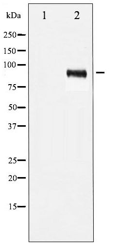 Western blot of IGF1R phosphorylation expression in Insulin treated 293 whole cell lysates,The lane on the left is treated with the antigen-specific peptide.