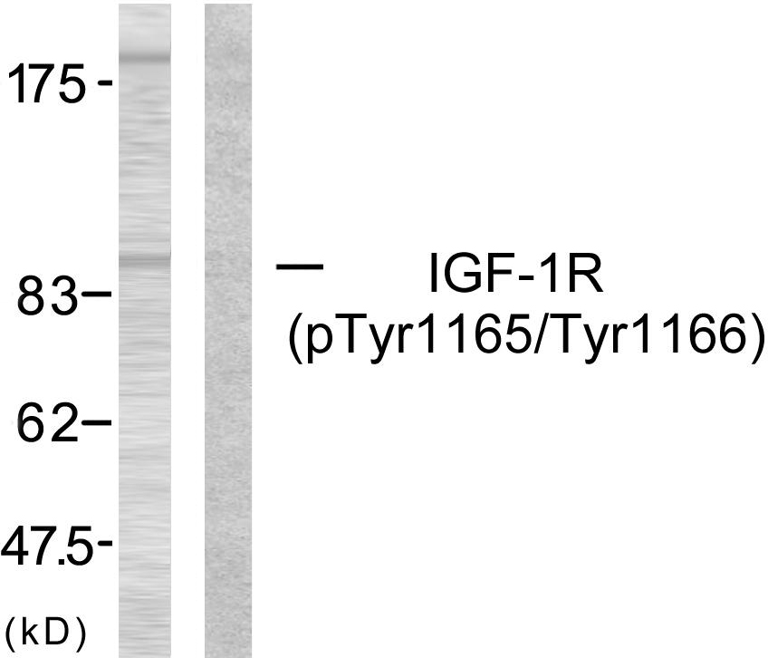 Western blot analysis of lysates from 293 cells treated with Insulin, using IGF1R (Phospho-Tyr1165/Tyr1166) Antibody. The lane on the right is blocked with the phospho peptide.