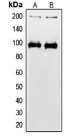 Western blot analysis of IGF1 Receptor (pY1165/Y1166) expression in HEK293T (A); MCF7 (B) whole cell lysates.