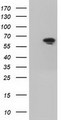 HEK293T cells were transfected with the pCMV6-ENTRY control (Left lane) or pCMV6-ENTRY IGF2BP2 (Right lane) cDNA for 48 hrs and lysed. Equivalent amounts of cell lysates (5 ug per lane) were separated by SDS-PAGE and immunoblotted with anti-IGF2BP2.