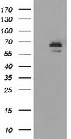 IGF2BP2 Antibody - HEK293T cells were transfected with the pCMV6-ENTRY control (Left lane) or pCMV6-ENTRY IGF2BP2 (Right lane) cDNA for 48 hrs and lysed. Equivalent amounts of cell lysates (5 ug per lane) were separated by SDS-PAGE and immunoblotted with anti-IGF2BP2.