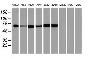 IGF2BP2 Antibody - Western blot of extracts (35 ug) from 9 different cell lines by using anti-IGF2BP2 monoclonal antibody.