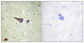 IHC of paraffin-embedded human brain tissue, using IGF2R Antibody. The sample on the right was incubated with synthetic peptide.