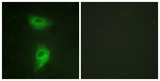 Immunofluorescence analysis of HeLa cells, using IGF2R Antibody. The picture on the right is blocked with the synthesized peptide.