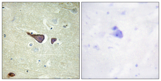 Immunohistochemistry analysis of paraffin-embedded human brain tissue, using IGF2R Antibody. The picture on the right is blocked with the synthesized peptide.