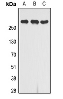 Western blot analysis of CD222 expression in Jurkat (A); K562 (B); Caco2 (C) whole cell lysates.
