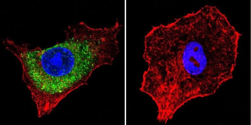 Immunocytochemistry/Immunofluorescence: Mannose 6 Phosphate Receptor (Cation independent) Antibody (2G11) - Mannose 6-Phosphate Receptor staining (green), F-Actin staining with Phalloidin (red) and nuclei with DAPI (blue) is shown. Cells were grown on chamber slides and fixed with formaldehyde prior to staining. Cells were probed without (control) or with or an antibody recognizing Mannose 6-Phosphate Receptor at a dilution of 1:20 over night at 4C, washed with PBS and incubated with a DyLight-488 conjugated.