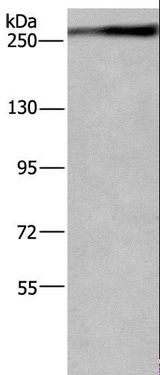 Western blot analysis of Jurkat cell, using IGF2R Polyclonal Antibody at dilution of 1:400.
