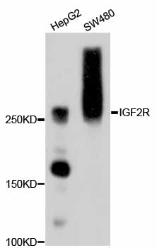 Western blot analysis of extracts of various cell lines, using IGF2R antibody. The secondary antibody used was an HRP Goat Anti-Rabbit IgG (H+L) at 1:10000 dilution. Lysates were loaded 25ug per lane and 3% nonfat dry milk in TBST was used for blocking.