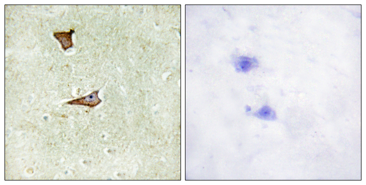 Immunohistochemistry analysis of paraffin-embedded human brain, using IGF2R (Phospho-Ser2409) Antibody. The picture on the right is blocked with the phospho peptide.