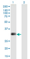 Western Blot analysis of IGFBP1 expression in transfected 293T cell line by IGFBP1 monoclonal antibody (M01), clone 2F9.Lane 1: IGFBP1 transfected lysate (Predicted MW: 27.9 KDa).Lane 2: Non-transfected lysate.