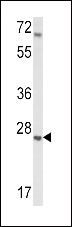 Western blot of IGFBP4 Antibody in mouse lung tissue lysates (35 ug/lane). IGFBP4 (arrow) was detected using the purified antibody.
